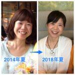 過食で虫歯から、回復して歯科矯正へ。摂食障害が治るということ