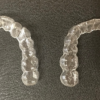 30代で歯の矯正を始めた理由:摂食障害・起業・カウンセリング